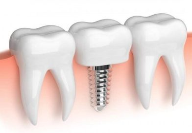 special dental treatments