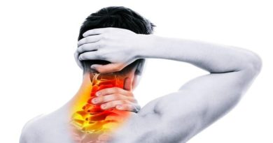 What is Occipital Neuralgia